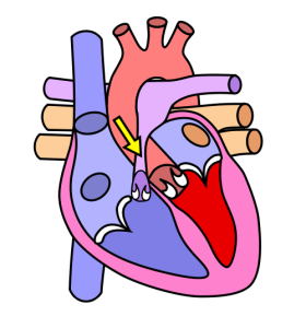 An image of a heart with an arrow pointing out pulmonic stenosis